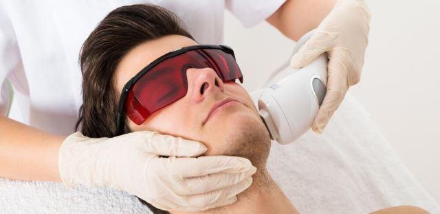 Depilação a laser na barba?