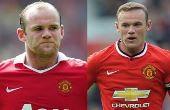 Transplante capilar: técnica já foi testada e aprovada pelo jogador inglês Wayne Rooney